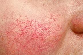 couperose huid