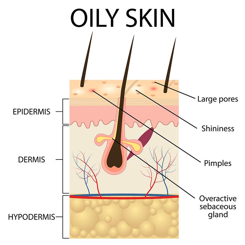 Afbeeldingsresultaat voor vette huid